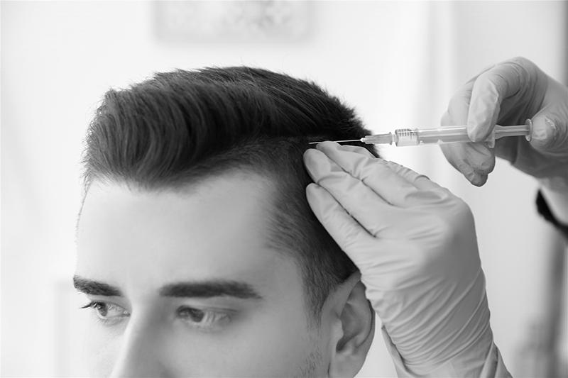 Haartransplantation Düsseldorf