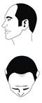 Haartyp 2