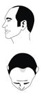Haartyp 3