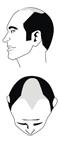 Haartyp 5