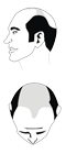 Haartyp 6
