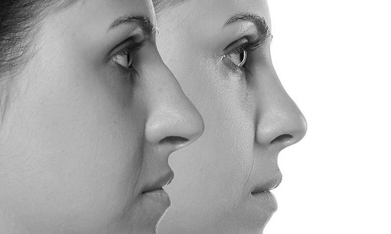 Nasenkorrektur durch Unterspritzung in Düsseldorf bei MEDICAL AESTHETICS